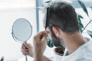 Mies on huolissaan hiustenlähdöstä ja suunnittelee hiustensiirtoa